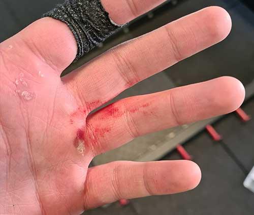 curar heridas mano crossfit